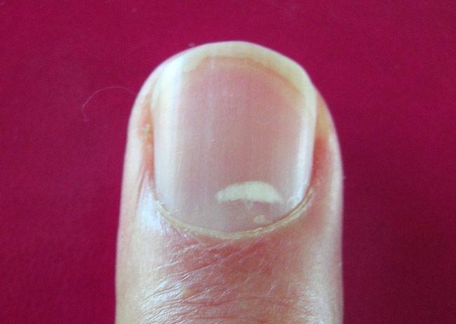 Белые пятна на ногтях рук: причины, их симптомы и лечение