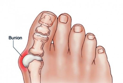 get-rid-of-bunions-naturally-with-this-simple-but-powerful-remedy-520x350