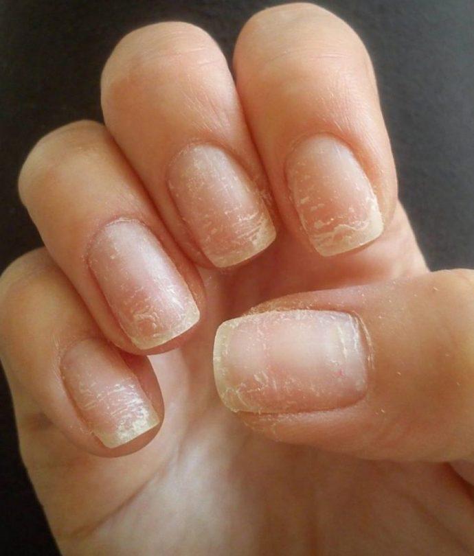Ломкие и расслоившиеся ногти