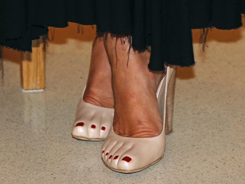 Фото самого ужасного педикюра: на что идут женщины в погоне за модой
