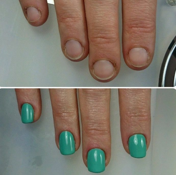 Запущенные ногти до и после