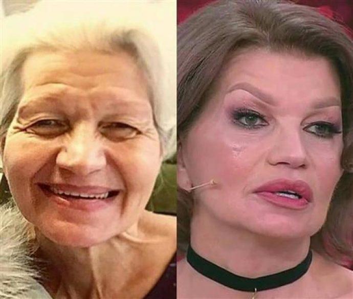 Жена Гогена Солнцева Екатерина Терешкович до и после пластической операции