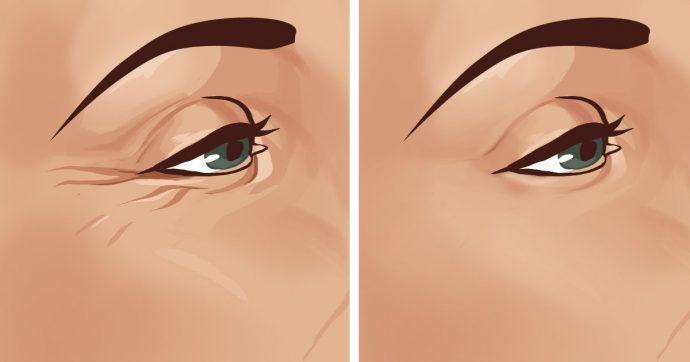 «Гусиные лапки» под глазами