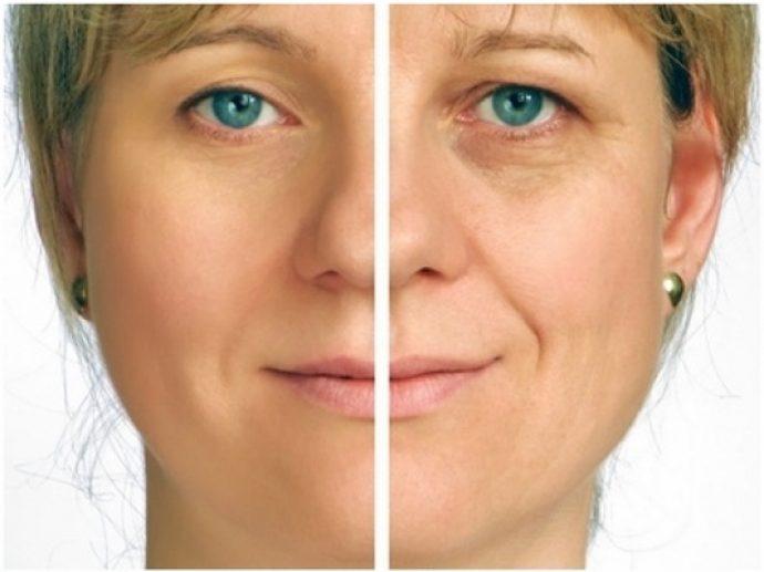 Кожа вокруг глаз после применения льняного масла