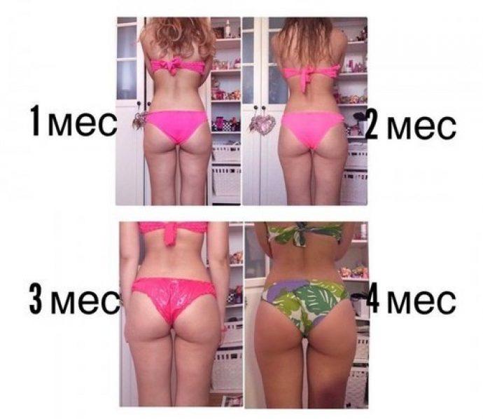 Изменения кожи девушки в течение четырёх месяцев следования антицеллюлитной диете
