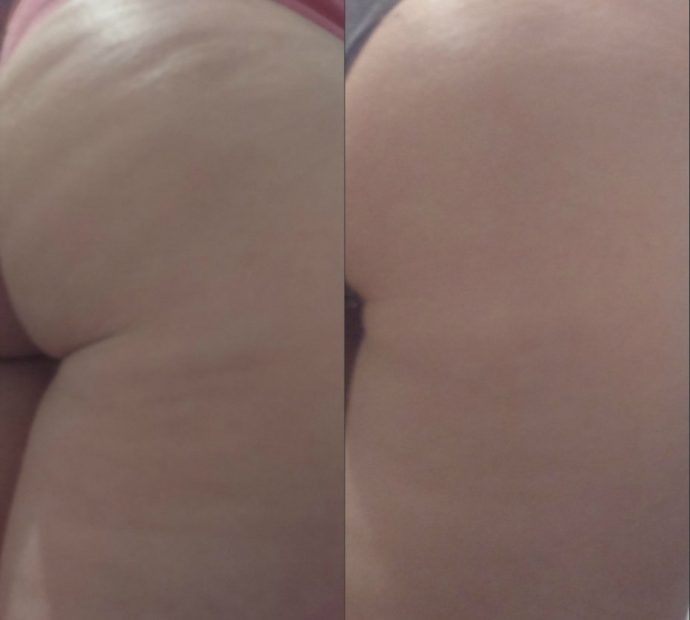 Кожа на бёдрах девушки до и после курса баночного массажа