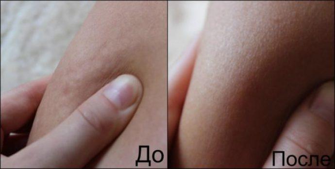 Сжатая кожа девушки до и после курса вакуумного антицеллюлитного массажа