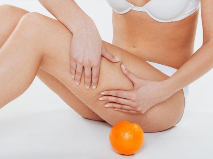 Девушка сжимает кожу на ноге