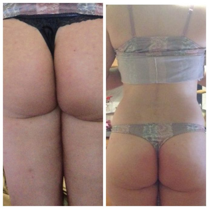 Ягодицы девушки до и после использования LPG массажа против целлюлита