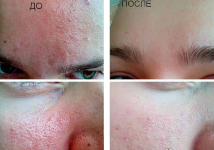 Лечение высыпаний с помощью желатиновой маски с углём