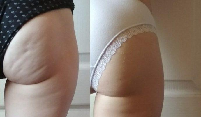 Ягодицы до и после упражнений от целлюлита