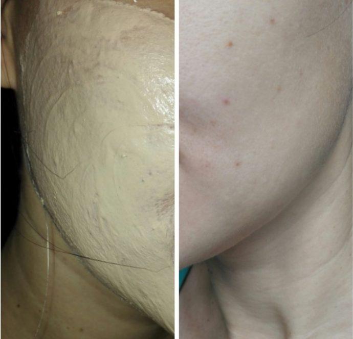 Косметическая розовая (алтайская) глина Фитокосметик на лице