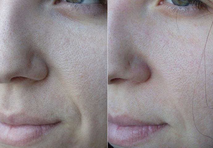 Лицо до и после применения маски Sephora с зелёной глиной