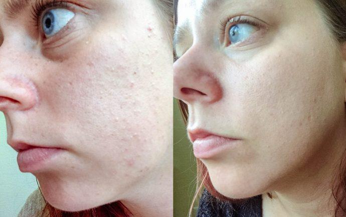 Лицо до и после использования рецепта маски с куркумой