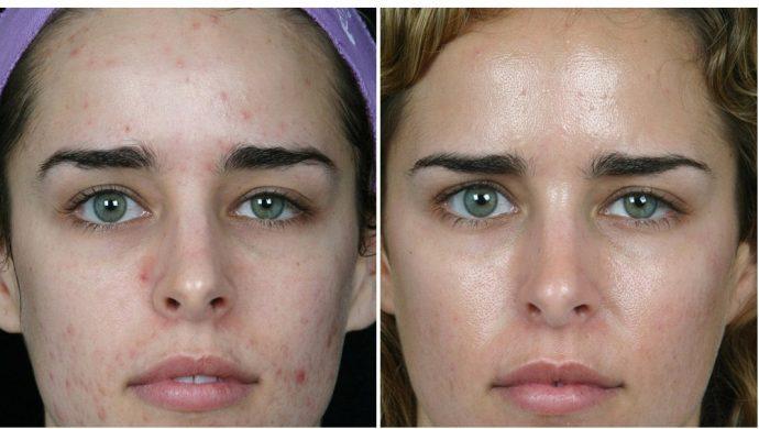 Фото до и после курса дарсонвализации от морщин и прыщей