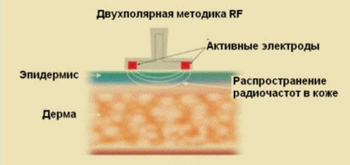 Двуполярный RF-лифтинг