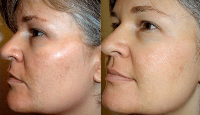 Эффект от использования масок (лицо до и после)