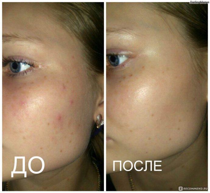 Фото лица до и после применения мумиё