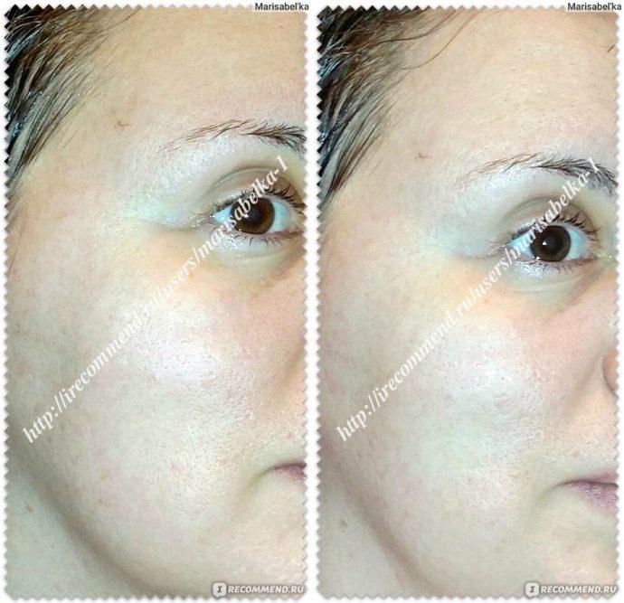 Фото лица до и после использования маски с мумиё