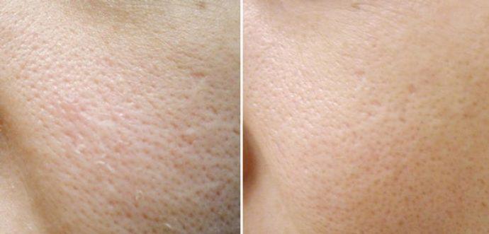Кожа до и после применения мумиё