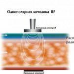Схема однополярного RF-лифтинга
