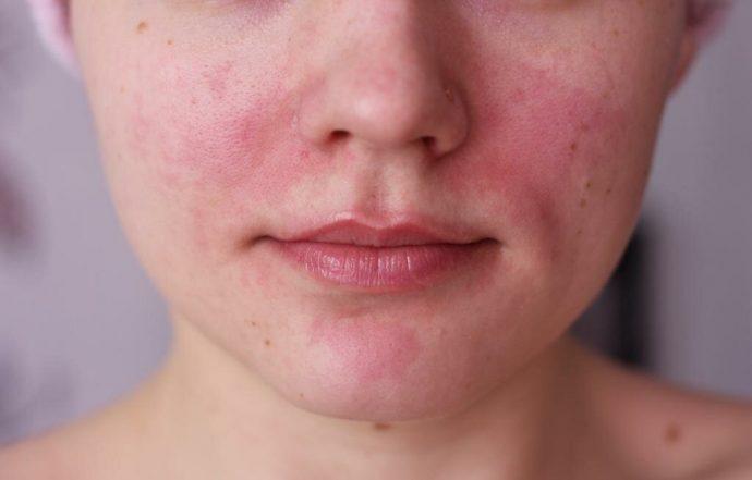 Раздражение на коже лица у девушки
