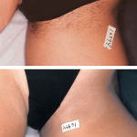 Гальваническая эпиляция в области бикини: до и после
