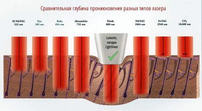 Схема проникновения лазера под кожу