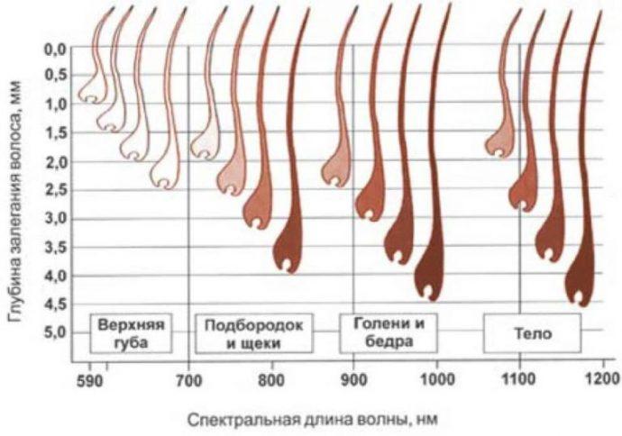 Глубина расположения волос на разных зонах