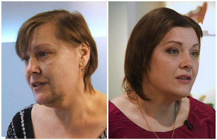 до и после лазерной эпиляции