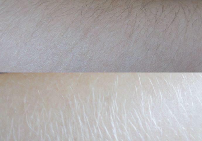 Волосы на руках до и после осветления