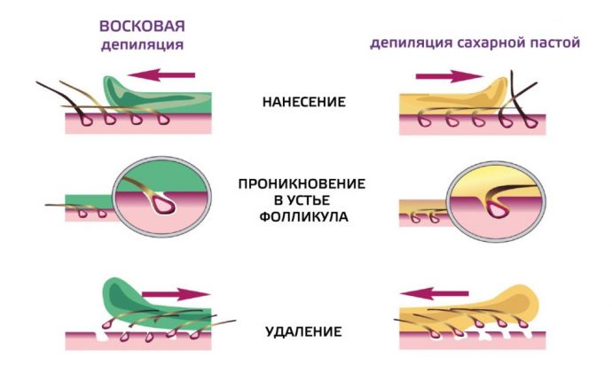 Сравнение шугаринга и восковой депиляции