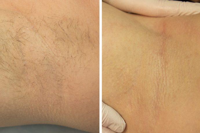 Фото подмышки до и после ваксинга