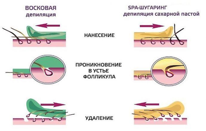 Схема действия ваксинга в сравнении с шугарингом