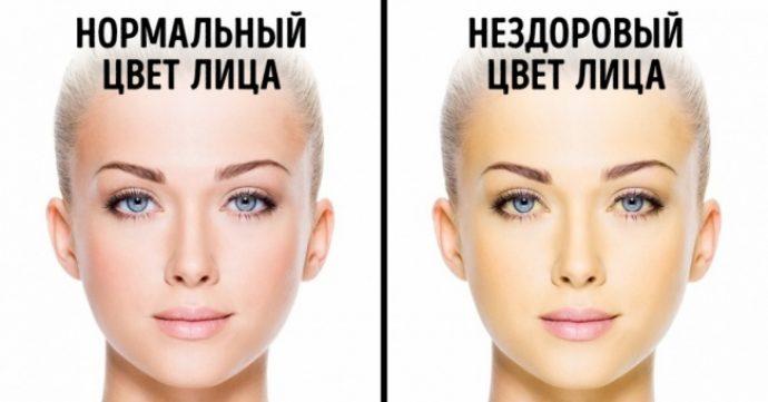 Здоровый и тусклый цвет лица