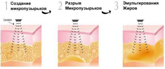 Процесс образования и разрыва микропузырьков, образующихся в тканях во время кавитации