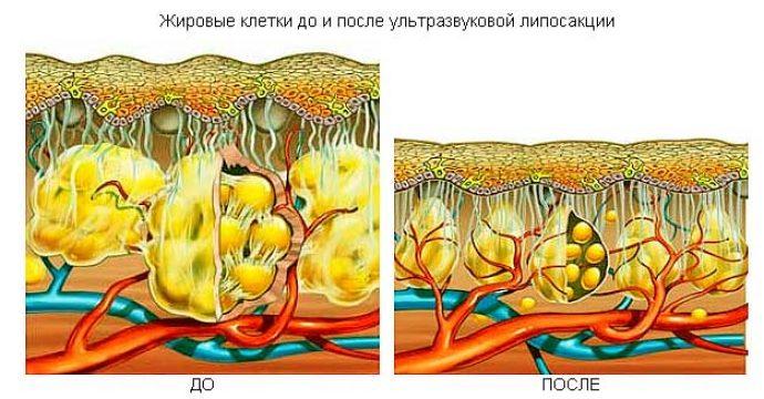 Жировые клетки до и после проведения ультразвуковой кавитации