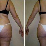 Тело женщины сзади до и после курса ультразвуковой кавитации