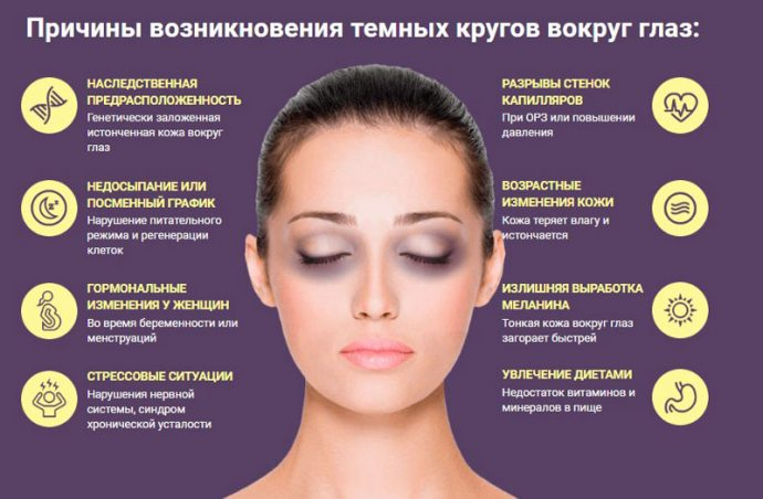 Инфографика причин тёмных кругов под глазами