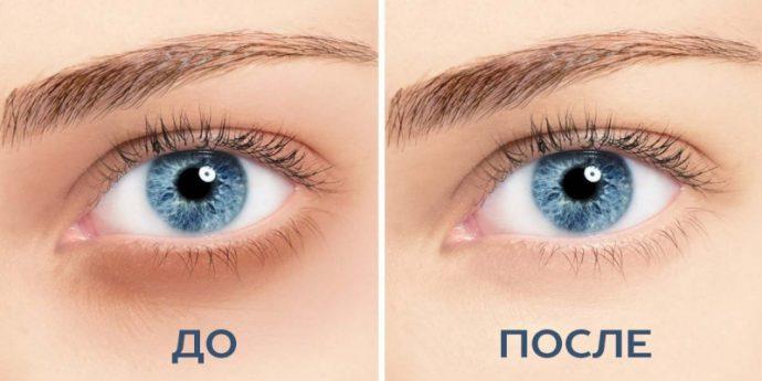 Кожа вокруг глаз до и после косметологической коррекции