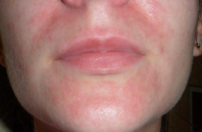 Воспаление кожи в области губ после эпиляции