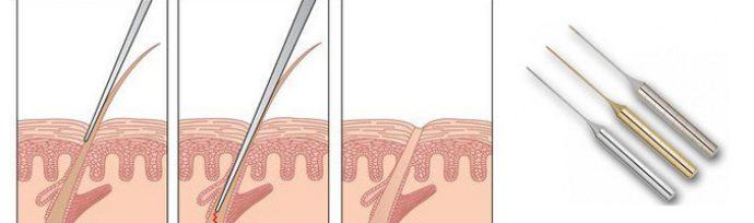 Удаление волос методом электроэпиляция