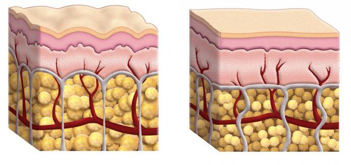 Изображение здоровой и поражённой целлюлитом кожи