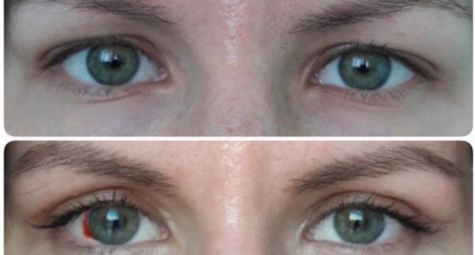 фото до и через 3 недели после блефаропластики
