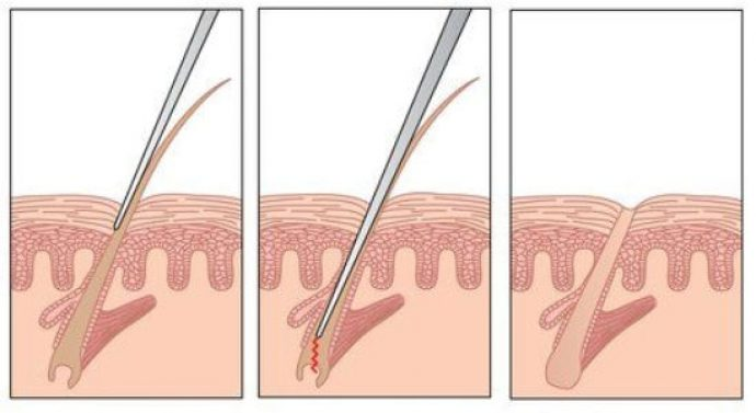 Схема воздействия на волос электродом