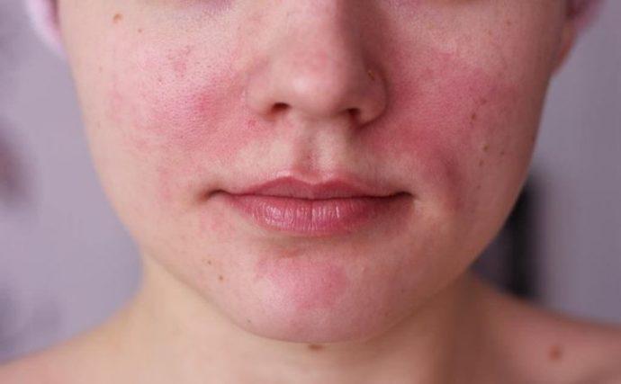 Признаки аллергии на кокосовое масло