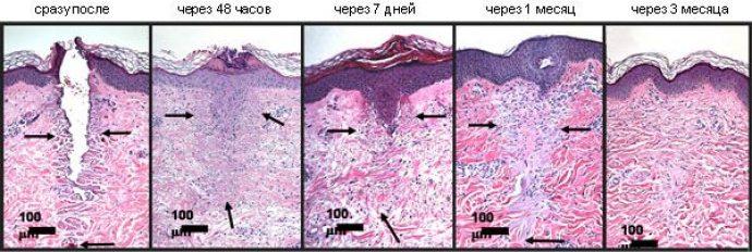 Восстановление кожи после обработки лазером