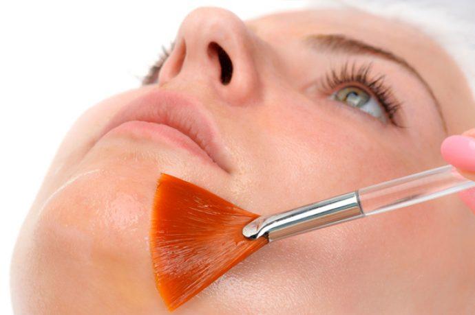 На лицо девушки наносится маска для ТСА пилинга (трихлоруксусная кислота)