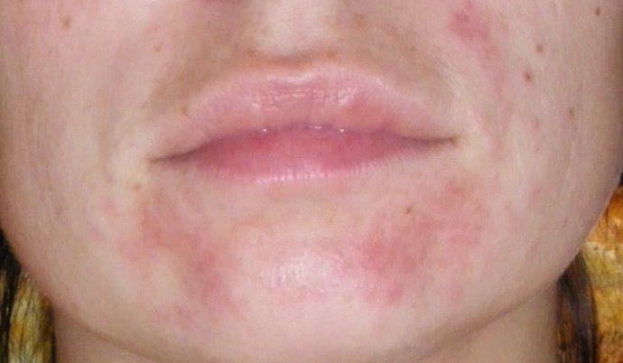 Фото-отзыв — аллергия на лице