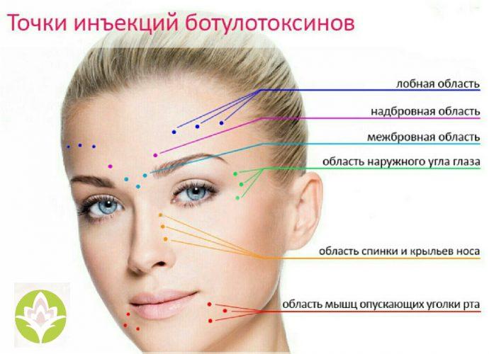 Схема введения ботулотоксина